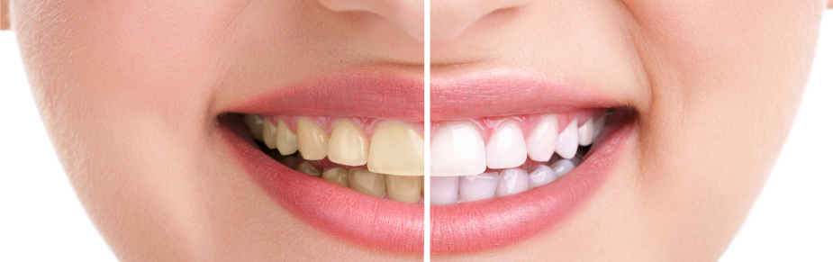 Why Should You Get Your Teeth Bleached?