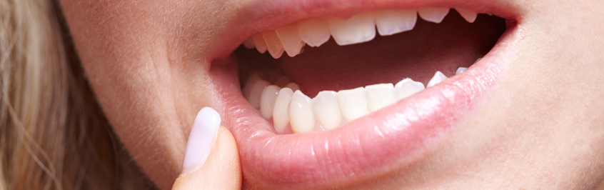 Wisdom Teeth Removal Causes and Symptoms