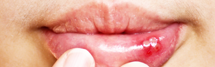 Canker Sores : Treatment & Prevention